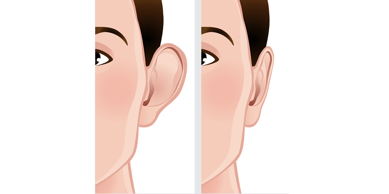 Eye Bag Removal Surgery before and after