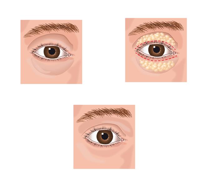 Eyebag-Surgery-Blepharoplasty