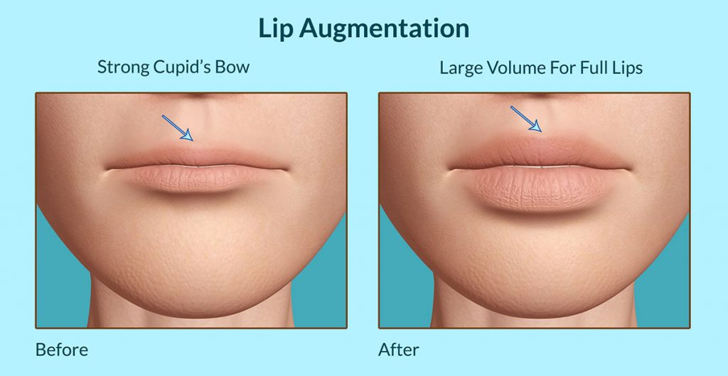 Lip-Augmentation before & after