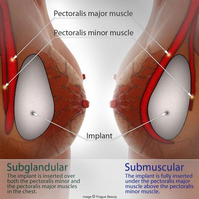 breast-augmentation