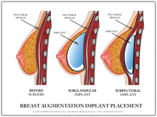 breast-implant-diagram1