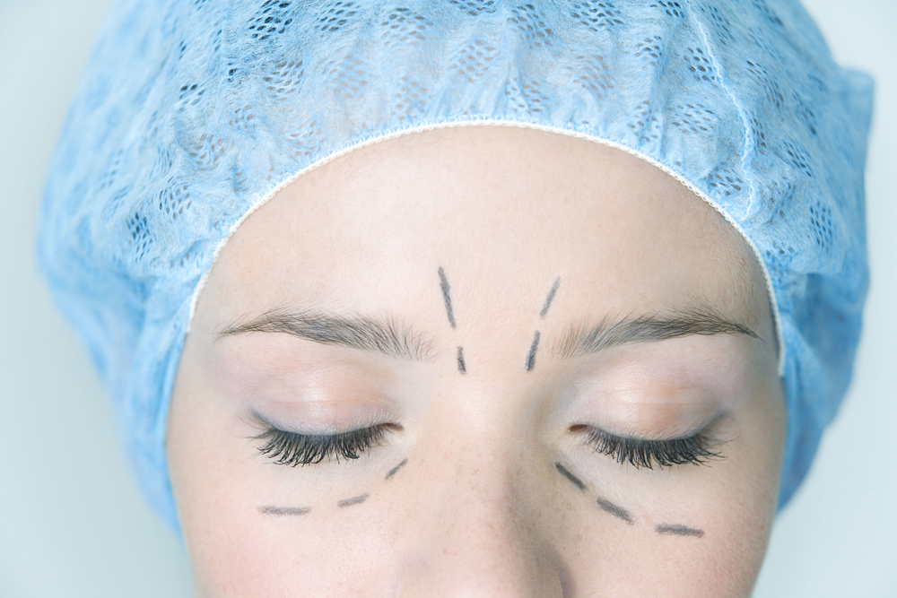 Eyebag Removal Surgery for Men and Women