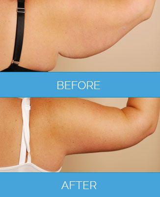 arm lift surgery1