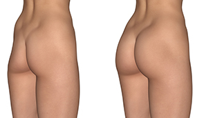 bum implant or Buttock Implant