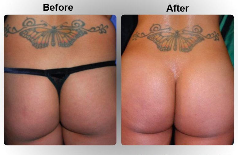 bum implant procedure