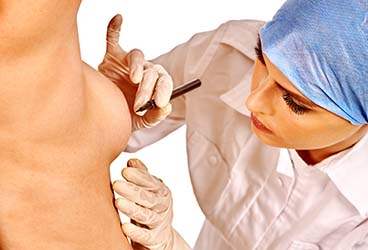 Areola Reduction Surgery