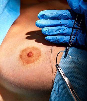 Risks of Nipple Correction