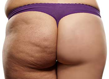 buttocks lift recovery