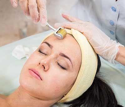 Dermaroller Treatment