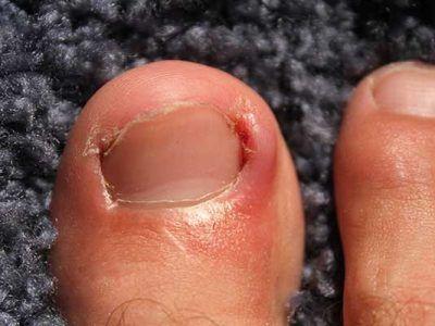 Ingrowing toenails