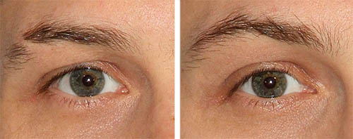 male eyebrows restoration