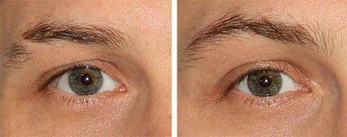 male eyebrows restoration
