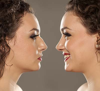 Nose Correction Before-After
