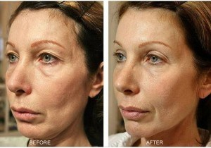 Before After Skin Tightening Treatment