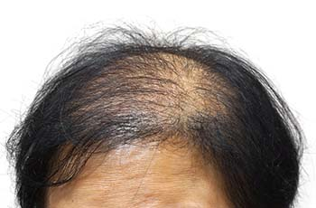 fue hair transplant for women