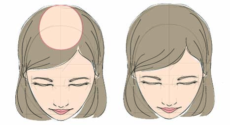 fut hair transplant for women