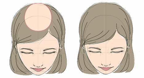fut hair transplant for women