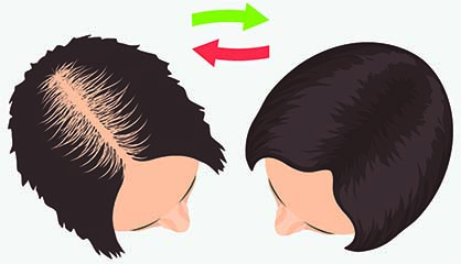 Result of FUE Hair Transplant for Women