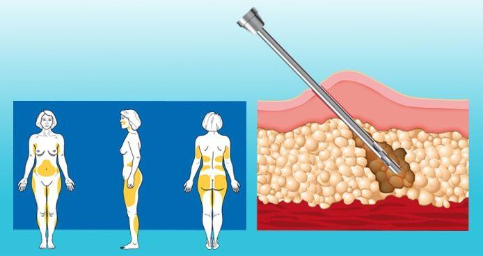 liposuction treatment to remove cellulite