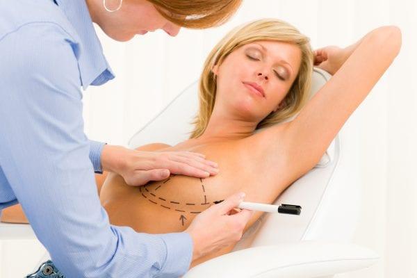 Breast Surgery Predictions