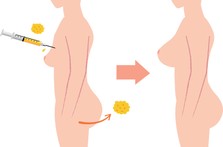 Fat Transfer - Breast Enlargement