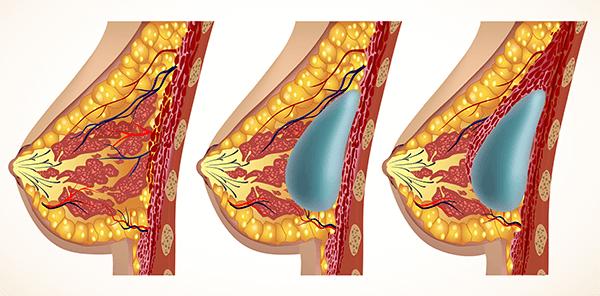 breast-enlargement-procedure