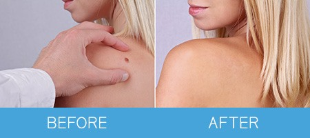 mole-removal-before-after
