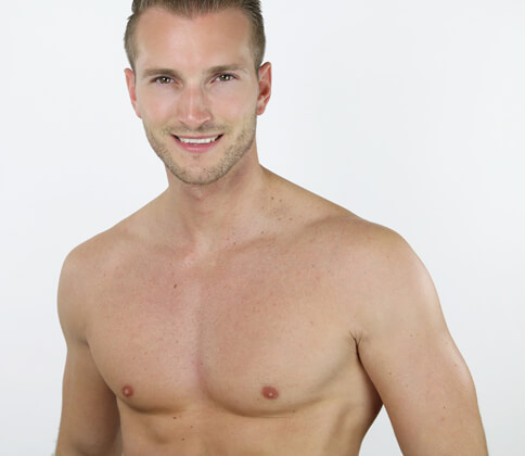 male-chest-reduction gynecomastia